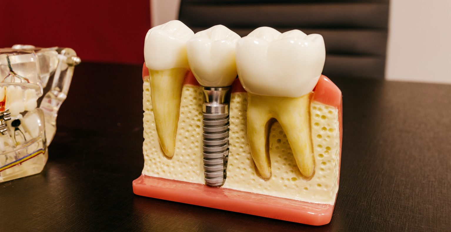dental implants in taylor